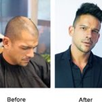 testimonials-hair-replacement